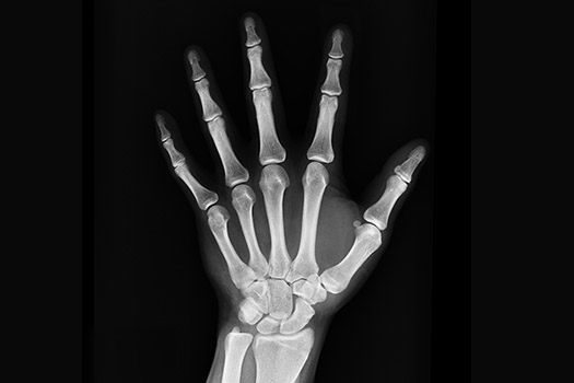 An x-ray of a human hand